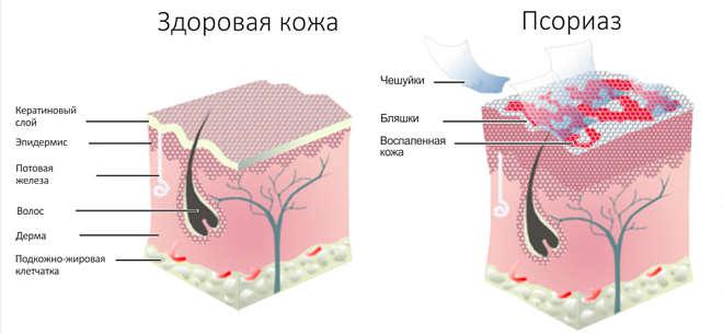 Обычная и больная кожа