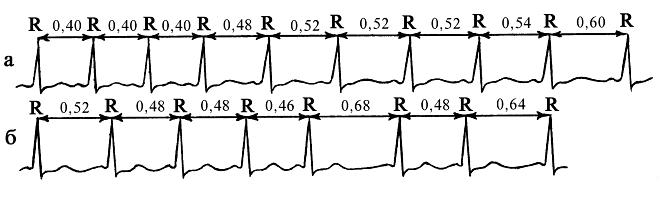 Электрокардиограмма при нарушениях ритма сердца